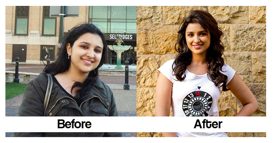 Parineeti chopra Before and after