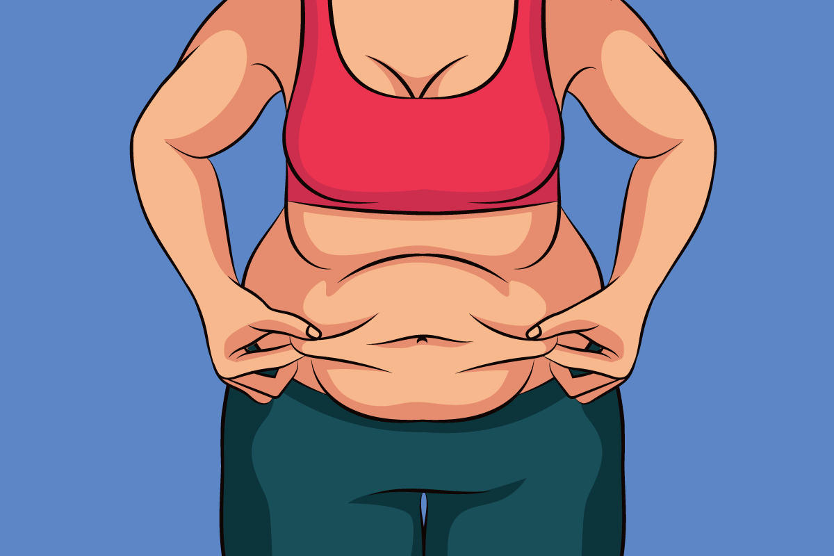 Extra skin after weight loss