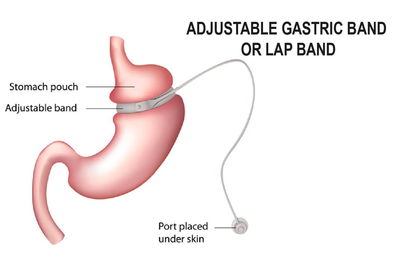Lap Band Weightloss Surgery